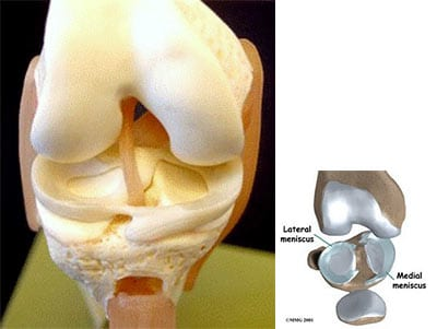 Ligaments, meniscus and cartilage damage are the most common damage in knee pain