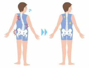 Fix Subluxation and get rid of pain in Malaysia