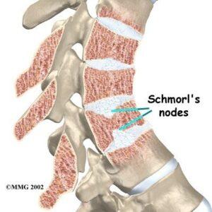 Schmorl's Node causing wedged vertebrae