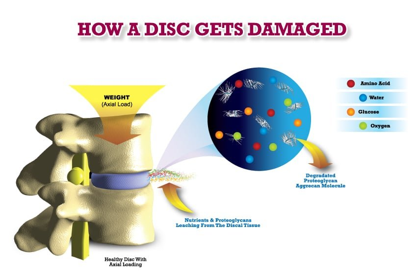 how a disc gets damaged