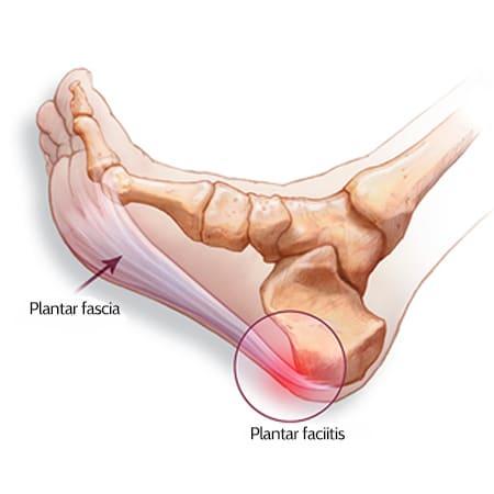 feet illustrates plantar fascia