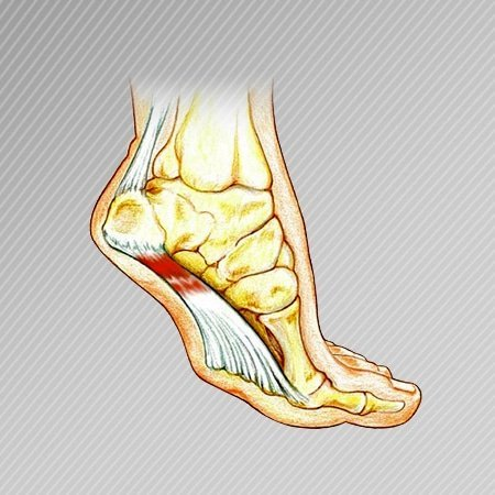 feet image shows plantar fasciitis pain area