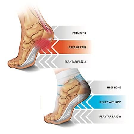 heel pain of plantar fascia