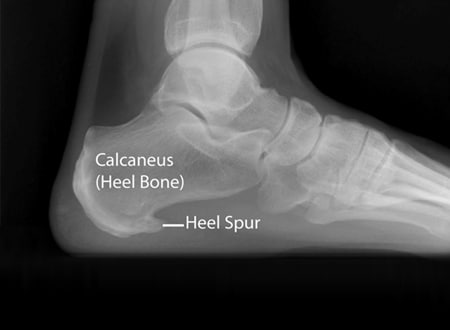 x-ray showing heel spur (bone spur or osteophyte)