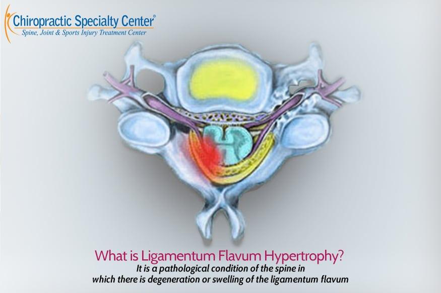 illustration of Ligamentum Flavum Hypertrophy