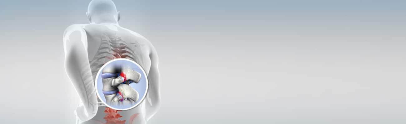 Facet Hypertrophy Treatment