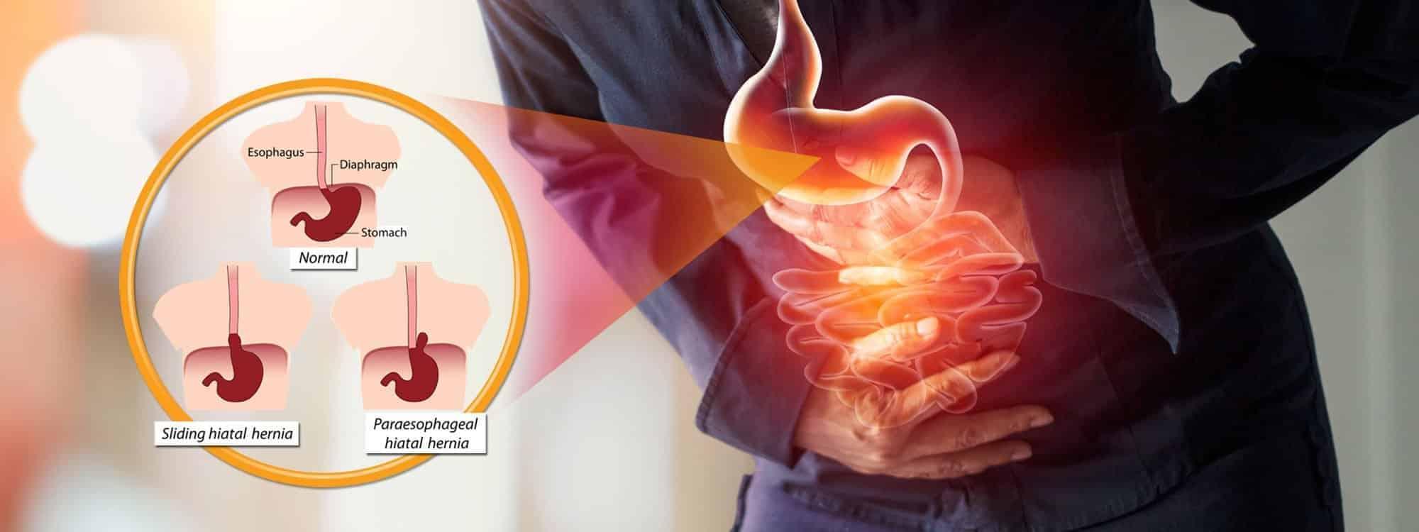 Hiatal Hernia Treatment Through Chiropractic Care